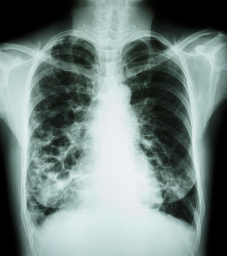 Bayer Gains Orphan Drug Status For Ciprofloxacin To Treat Non Cystic Fibrosis Bronchiectasis