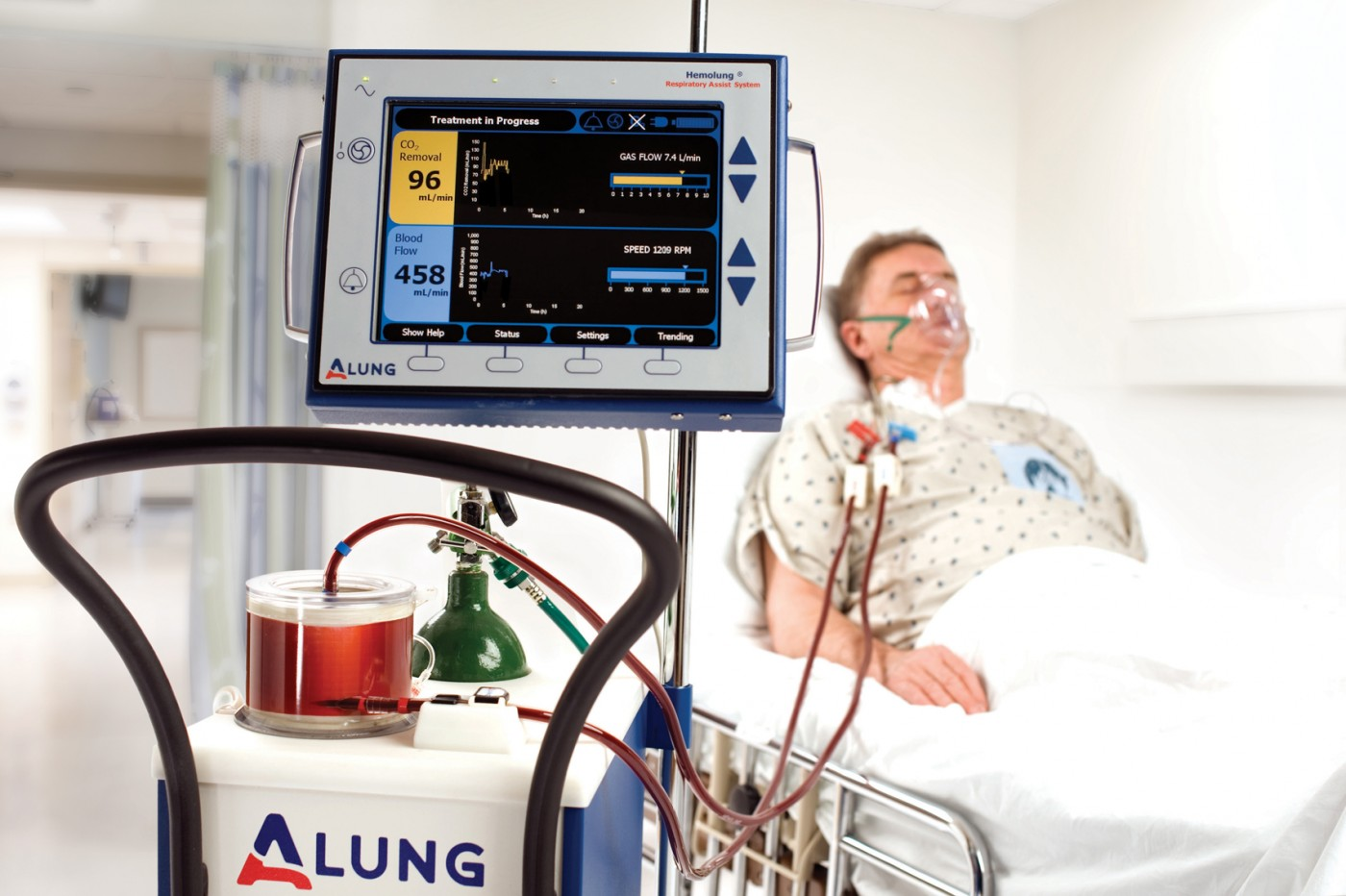 Cystic Fibrosis Lung Transplant Patient First in US to be Saved by Hemolung