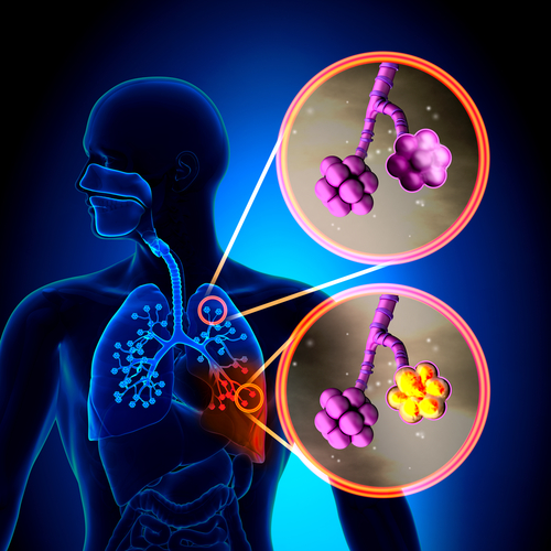 COPD Patients Differentially Affected by Pneumonia