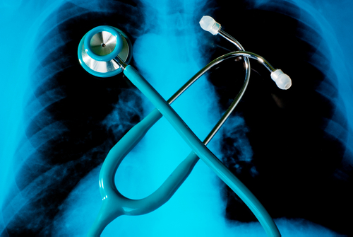 $7 Million Grant Seeks To Reduce Burden Of Lung Cancer In Kentucky