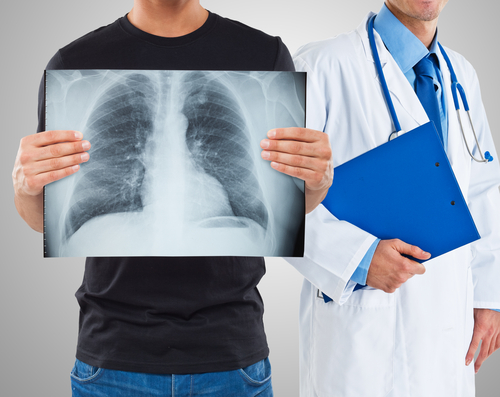 Cryobiopsy May Offer Diagnostic Value For Idiopathic Pulmonary Fibrosis, Other Lung Diseases
