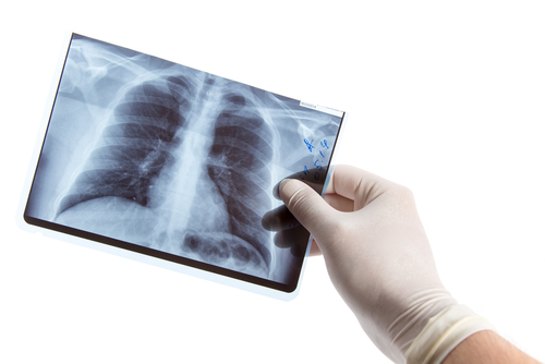 Acute Idiopathic Pulmonary Fibrosis Exacerbations Difficult To Diagnose, Says Study
