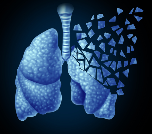Novartis Announces Positive Data from Phase III FLAME Clinical Trial in COPD