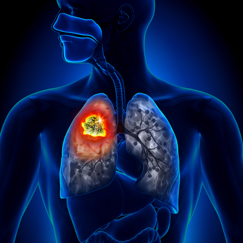 Congressional Lung Cancer Research Funding to Benefit Military Personnel