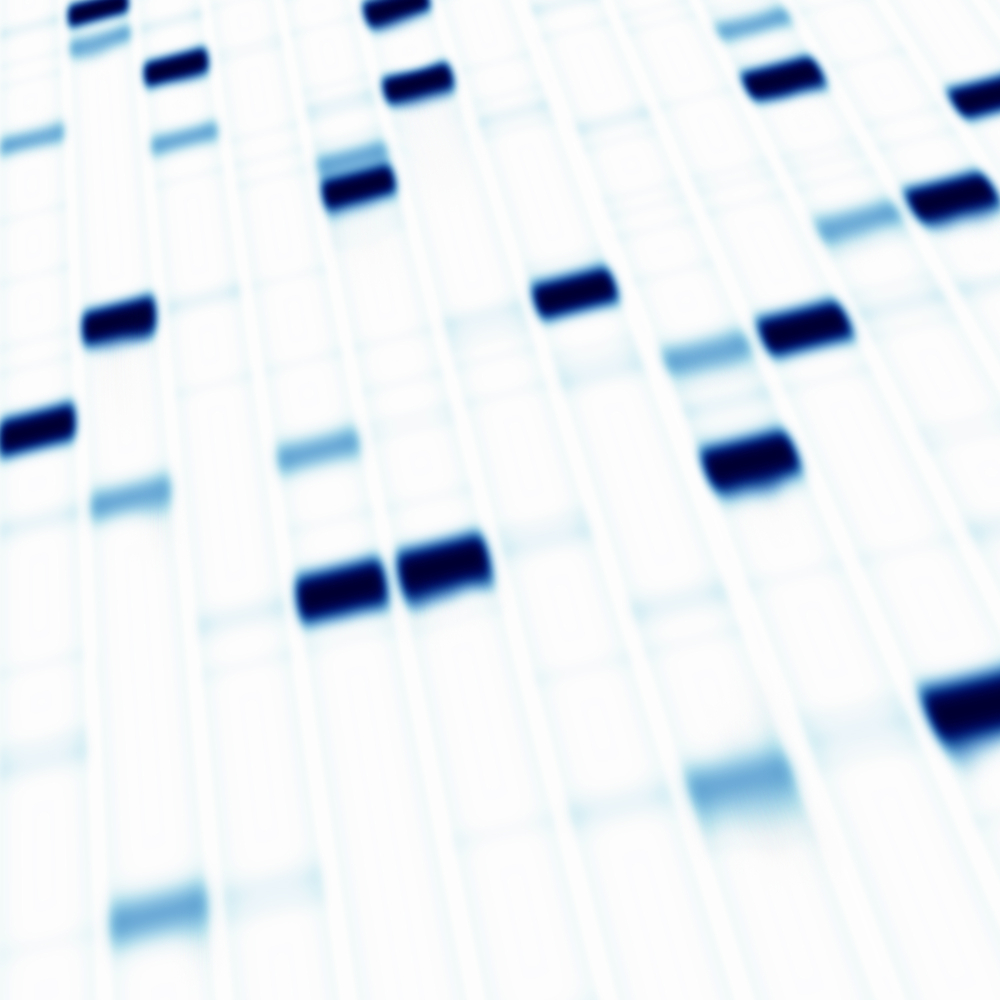 Genetic Variations Predispose COPD Patients To a More Severe Form of the Disease