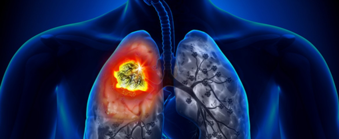 CDC Report Reveals Lung Cancer Ranks Third Most Common