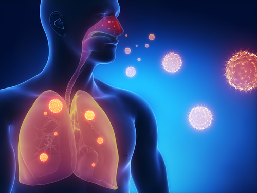 KaloBios' Pseudomonas Aeruginosa Lung Infection Therapy Fails Study Primary Endpoint in CF Patients