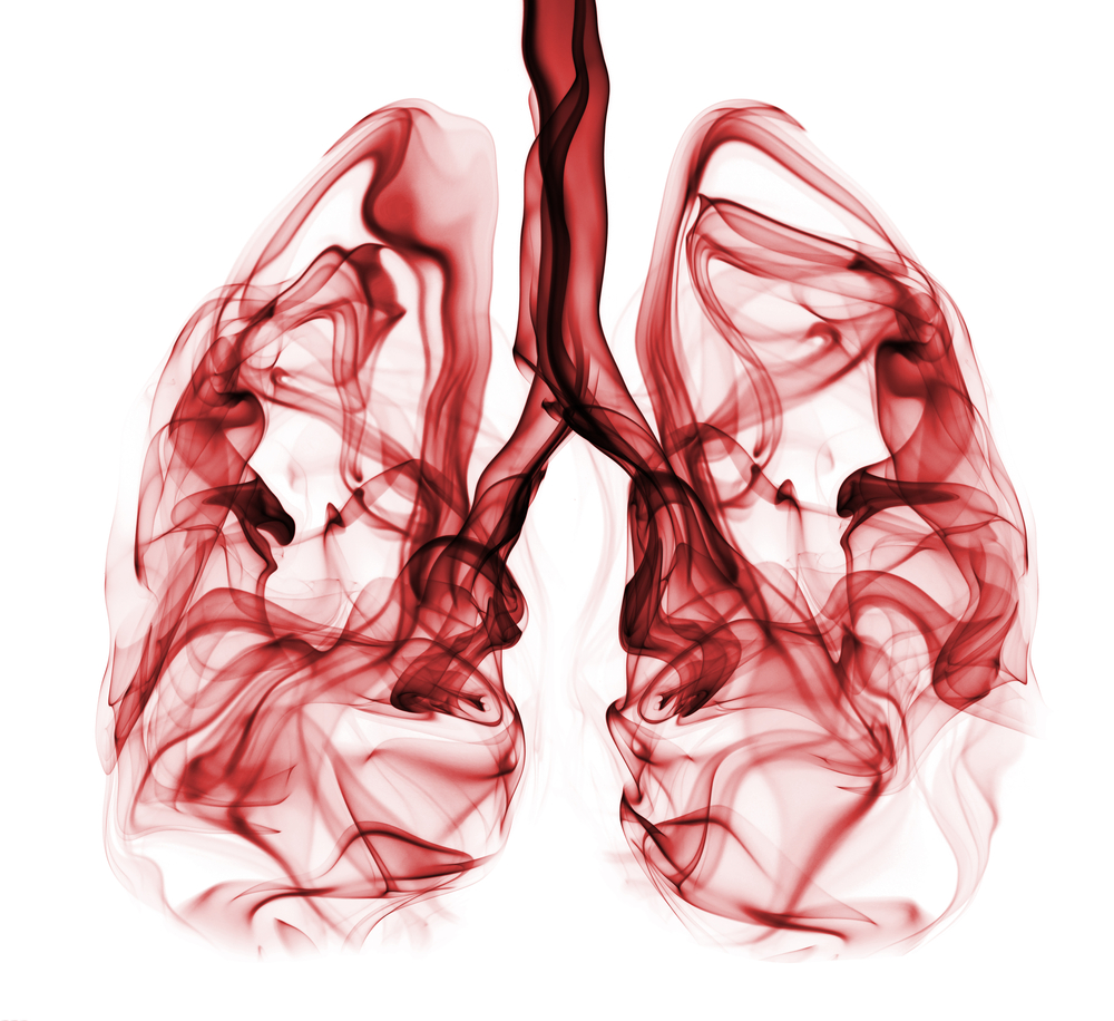 Pyruvate Carboxylase Enzyme Identified as Supporter of Tumor Growth in NSCLC