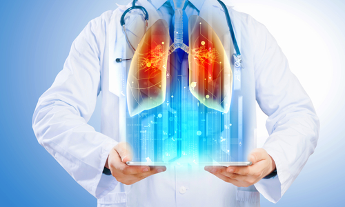 Systemic Sclerosis Patients Also Benefit from Lung Transplantation, Study Reveals