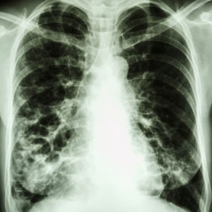 An X-ray of Bronchiectasis