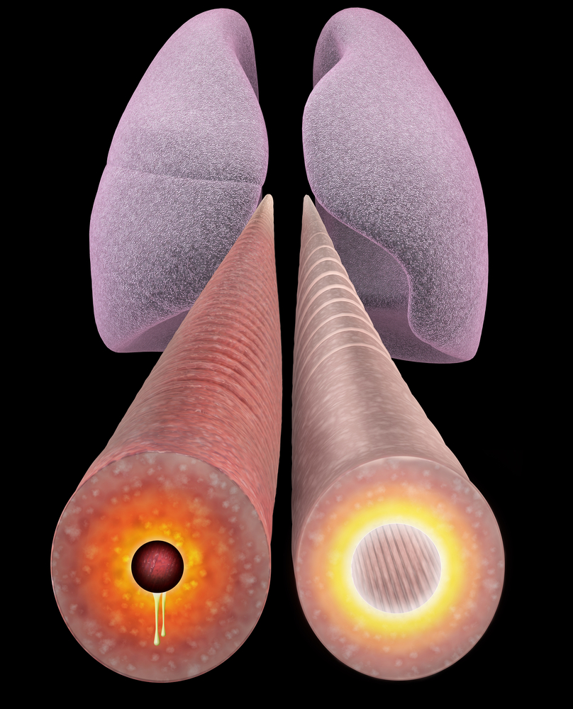 copd inflammation