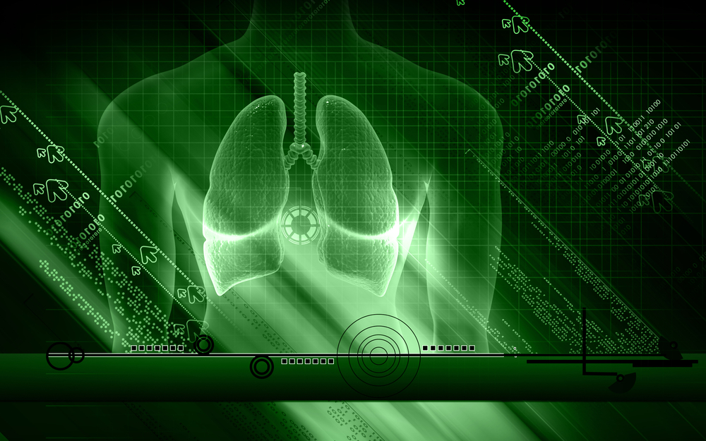 New '4-D' Lung Cancer Model Could Quicken Discovery Of New Therapies