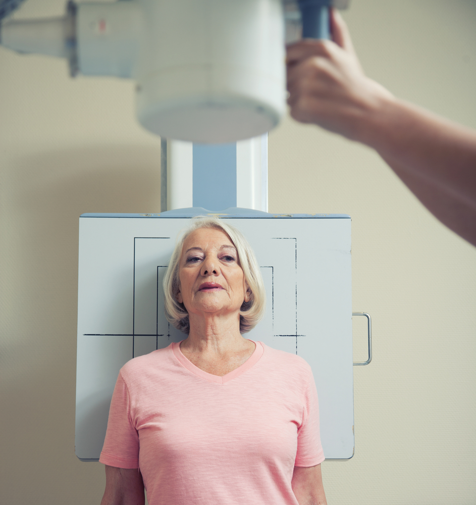 Age Found To Increase Risk for Radiation-induced Bronchiolitis Obliterans Organizing Pneumonia (BOOP) in Breast Cancer Patients