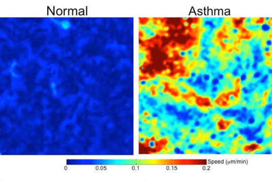 Harvard Scientists Find Asthma Cells Scrambling Like There's A Fire Drill