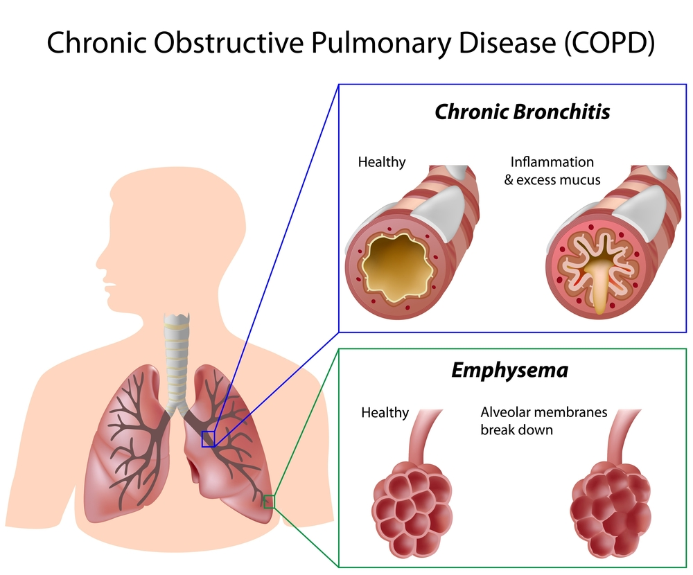Aclidinium/formoterol Therapy Reduces COPD Patients' Exacerbations