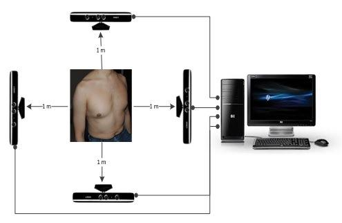 Researchers Build Promising CF Diagnostic System Using Microsoft's Xbox Kinect Sensors