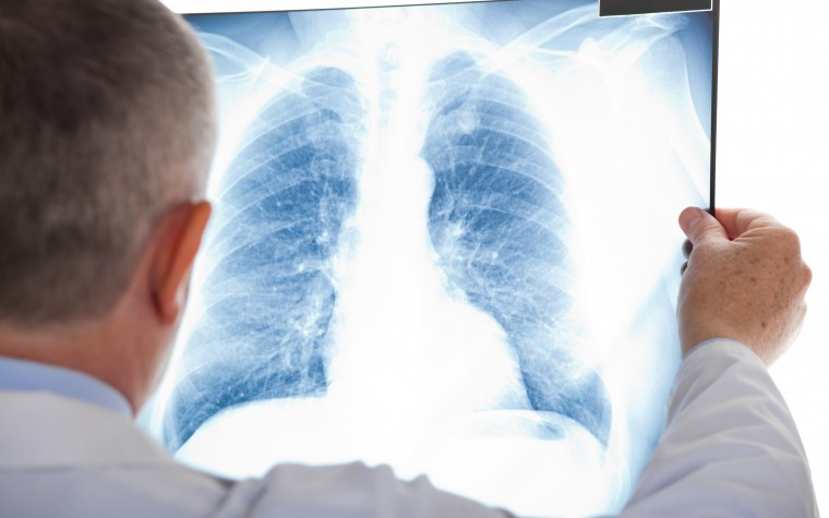 AP32788 studies for NSCLC