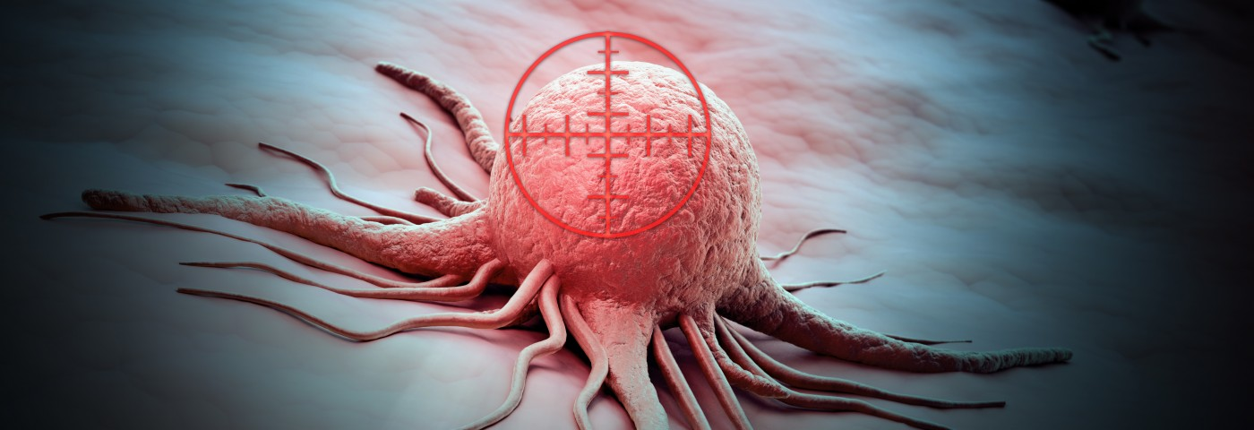 Phase 3 Trial of Brigatinib for Non-Small Cell Lung Cancer Linked to ALK Mutations Is Launched by ARIAD