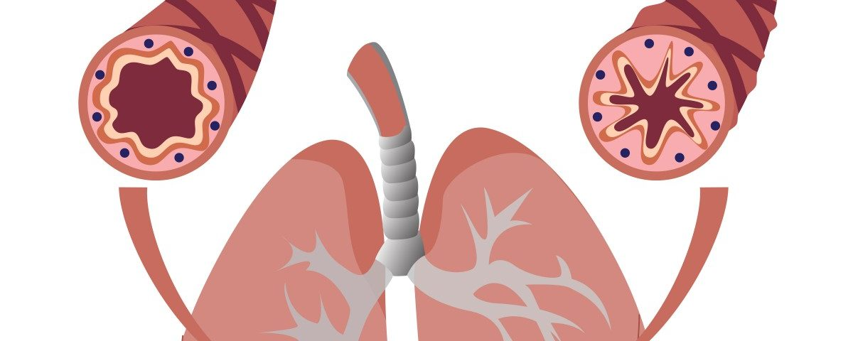 HMGB1 Protein Causes Lung Airways of People with Severe Asthma to Narrow, EU Study Finds