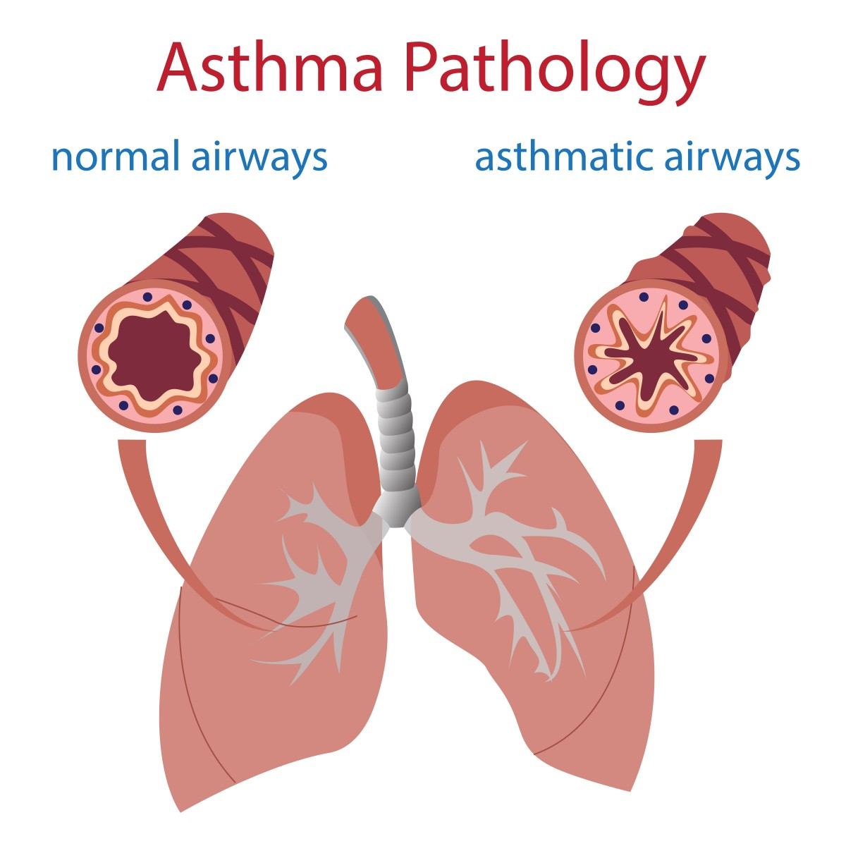 an analysis of the causes and treatments of asthma a chronic lung disease Patient understands that asthma is mostly a chronic disease and and its diagnosis, prognosis, and treatment  arterial blood gas analysis should be considered in.
