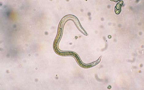 Molecule Produced by Parasitic Worms Could Lead to New Asthma Therapies, Study Suggests