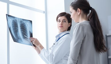 Real-World Study Confirms Benefits of Percepta Genomic Classifier in Diagnosing Lung Cancer