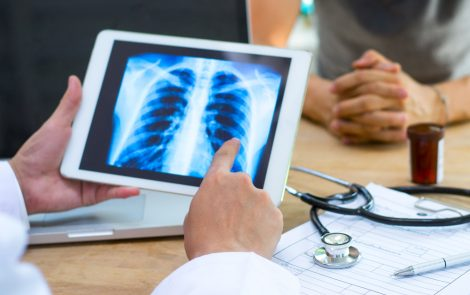 Aggressive Surgery Increases Lung Cancer Patients' Long-term Survival, Study Shows
